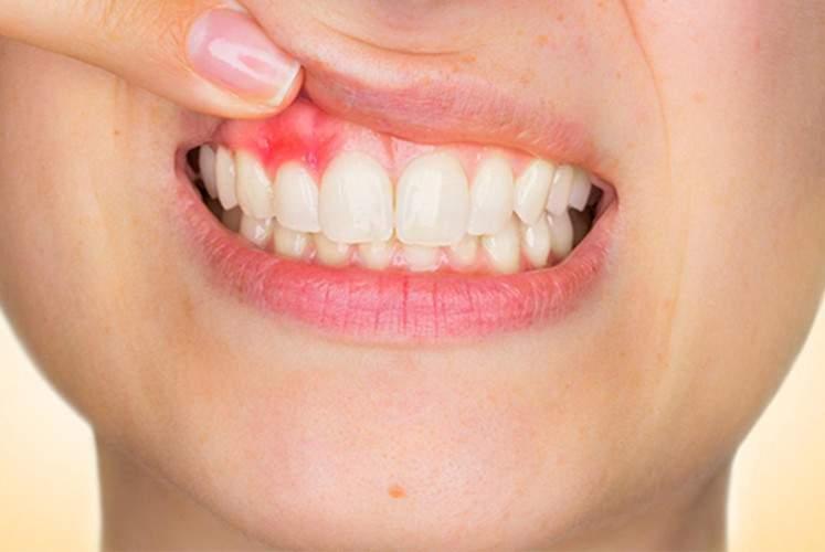 Câncer bucal é silencioso e pode ser fatal em 40% dos casos