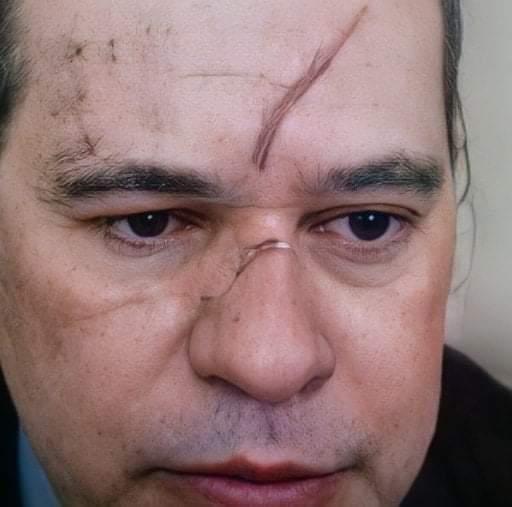 Dias Toffoli surge com hematomas no rosto em sessão do STF