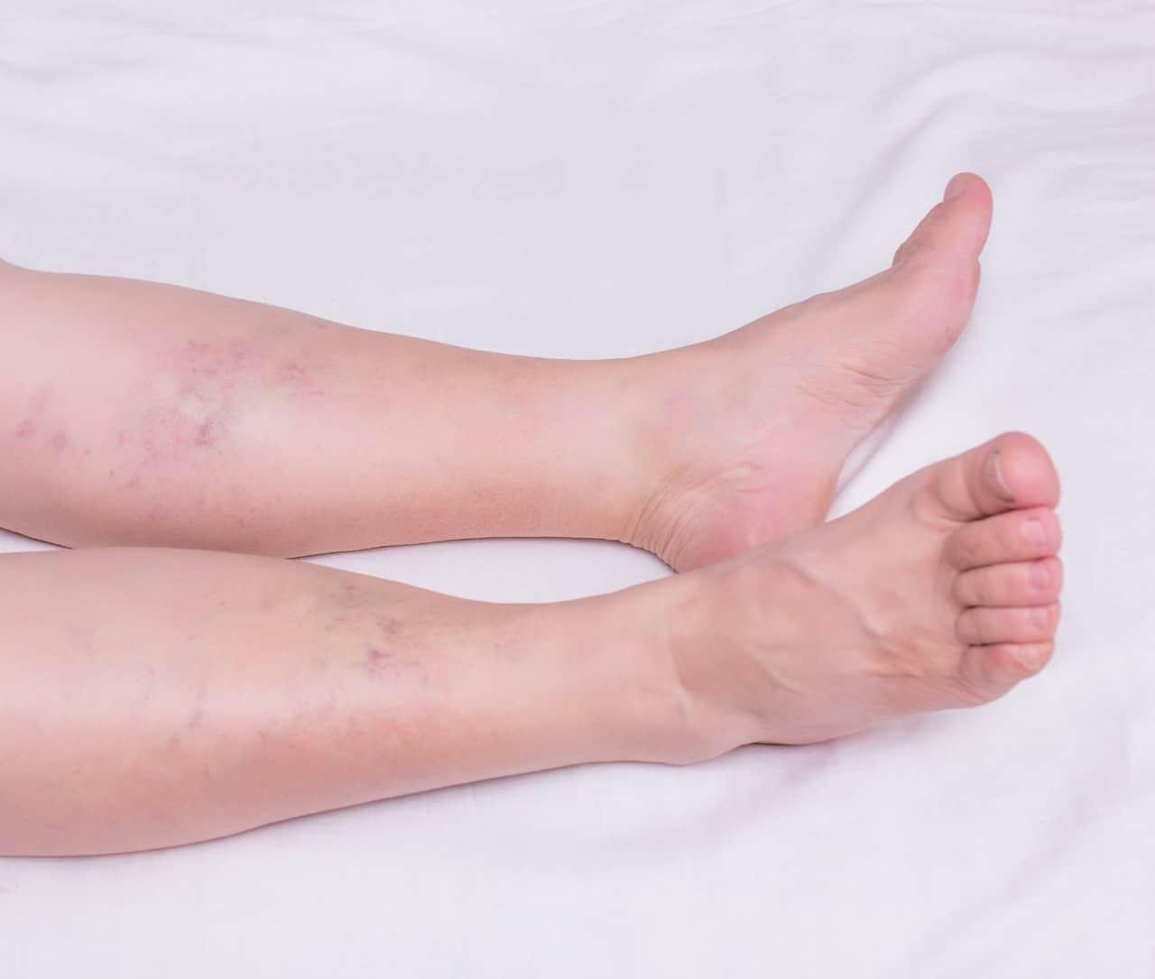 Dor no tornozelo: Principais causas e tratamentos