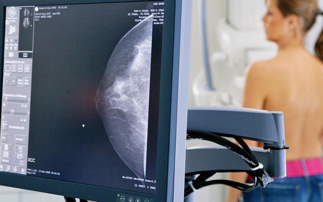 Câncer de mama: oncologista do Hospital de Clínicas orienta sobre o tratamento da doença